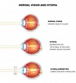 Myopia and normal vision. Myopia is being shortsighted. Myopia corrected with minus lens. Anatomy of the eye cross section. Detailed illustration. poster
