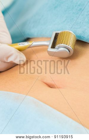 Medical cosmetic procedure. Mikronidling. Beautician performs Dermaroller procedure.young beautiful woman having an injection mesotherapy on belly.?osmetic procedures in spa clinic. poster