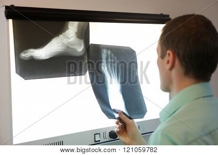 specialist  watching images of foot at  x-ray film viewer