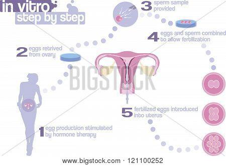 In Vitro Fertilization Step By Step