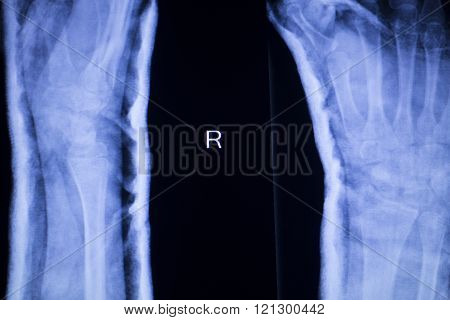 Forearm Arm And Elbow Xray Scan