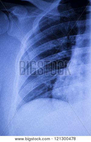 Spine Vertebra Ribs Back Injury Xray Scan