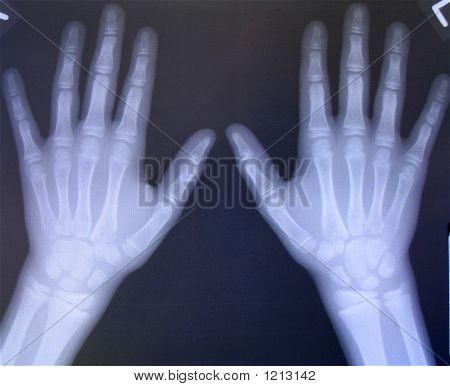 Bilateral Hand X-Rays