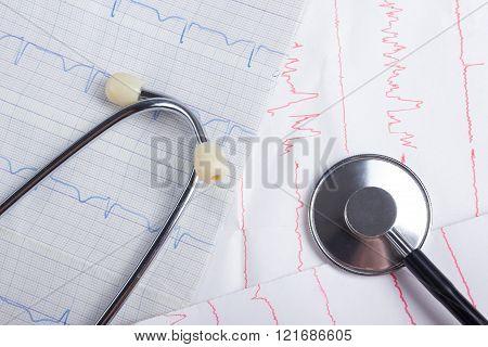 Cardiogram pulse trace and stethoscope concept for cardiovascular medical exam, closeup