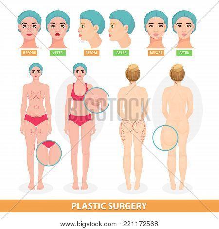 Plastic surgery vector patient woman before surgical operation facelifting or facial anti aging lift surgically or breast and face lined of surgeon illustration isolated on white background.