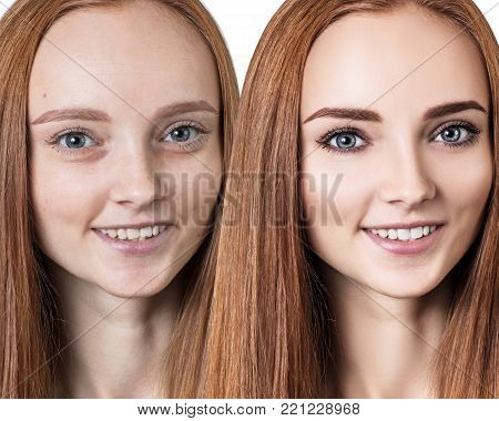 Woman before and after rejuvenation or plastic surgery. Skincare and anti-aging concept.