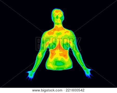 Thermographic image of the front of the upper body of a woman with the photo showing different temperature in range of colors from blue showing cold to red showing hot which can indicate joint inflammation.