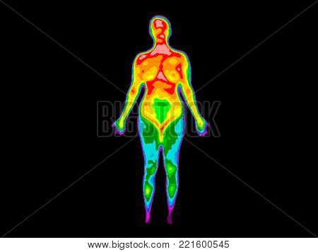 Thermographic image of the front of the whole body of a woman with the photo showing different temperatures in a range of colors from blue showing cold to red showing hot which can indicate joint inflammation.