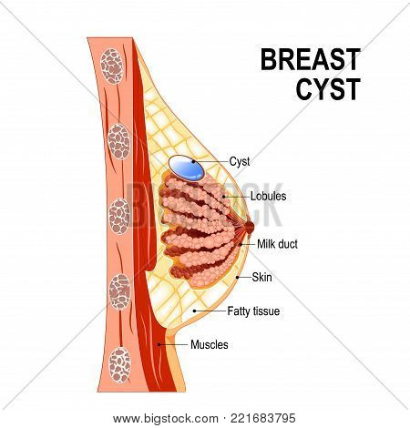Breast cyst. Cross-section of the mammary gland with fluid-filled in sac within. Women's Health. Human anatomy. Vector diagram for medical use