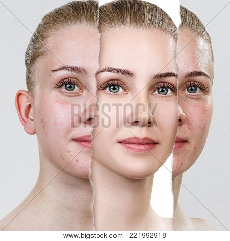 Torn old photo with acne skin. Woman before and after skin treatment.