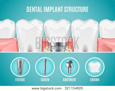 Dental Implant Structure. Vector Reallistic Tooth Implant Cut. Dental Surgery Banner. Illustration A