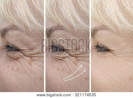 Woman Elderly Wrinkles Before And After Treatment Therapy, Contrast