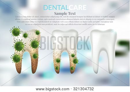 Tooth 63