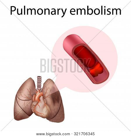 Pulmonary Embolism. Lungs. Vector Medical Anatomy Illustration.