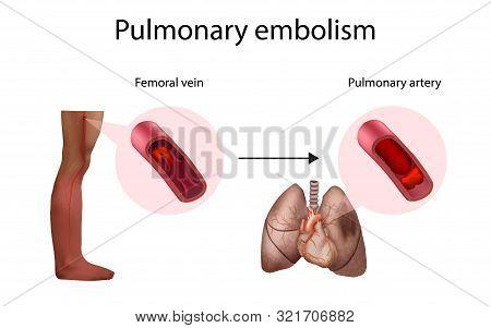 Pulmonary Embolism, Deep Vein Thrombosis. Vector Medical Anatomy Illustration.