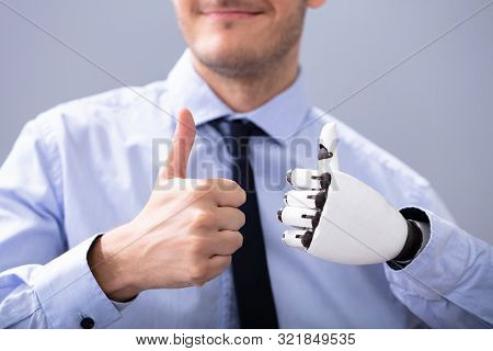 Businessperson With Prosthetic Limb Showing Thumb Up. Artificial Limb