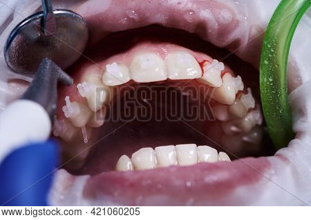 Close Up Of Periodontist Using Dental Tools While Cleaning Teeth Of Patient, With Cheek Retractor In