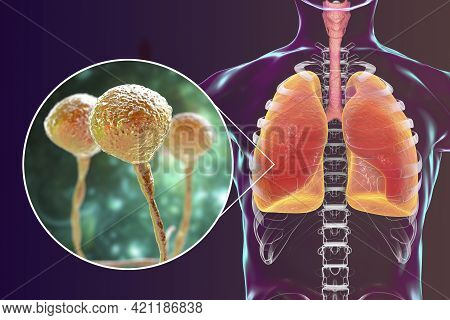 Lung Mucormycosis, A Lung Disease Caused By Fungi Mucor, Also Known As Black Fungus, With Close-up V