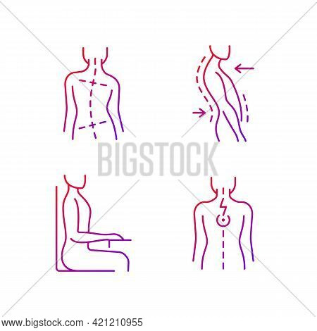 Bad Posture Problems Gradient Linear Vector Icons Set. Uneven Hips And Shoulders. Swayback Posture.