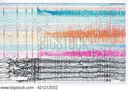 Photograph Of Ictal Eeg Recording During Seizure. Seizure Waves Showing Propagation Of High Amplitud