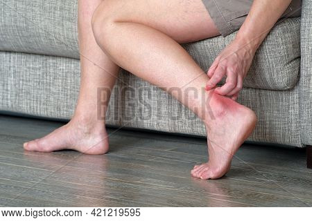 Scabies On The Skin. A Woman Scratches An Inflamed Spot On Her Leg. Lichen On The Leg On A Red Backg