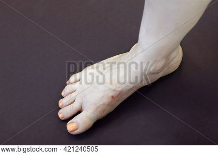 Woman Right Leg With Scar After Trauma Or Surgery, Result Of Tigh Shoes, Deformity Great Toe Or Firs