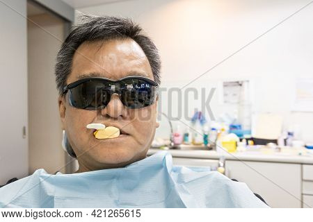 Dental Patient Fitted With Material To Obtain Teeth Imprint Or Impression