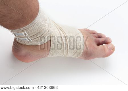 Bandaged Ankle And Foot With A Fixing Elastic Bandage. Bruises In The Toes After A Severe Sprain Inj