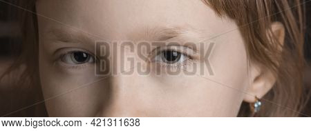 Dilated Pupil Of The Girl. Ophthalmology. Eye Treatment.