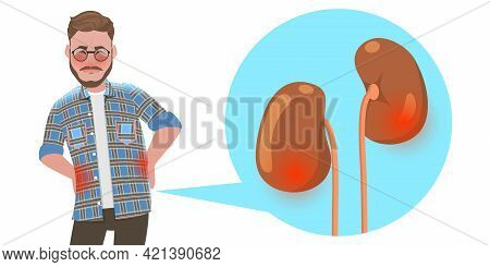 3d Flat Vector Conceptual Illustration Of Kidney Stones Disease, Urinary System Disorders