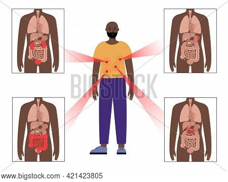 Pain In Internal Organs In A Black Man Body. Problem With Kidney, Pancreas, Intestine And Spleen In