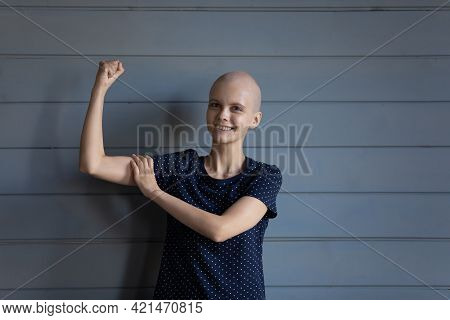 Happy Strong Cancer Patient Winning Battle For Life, Getting Better