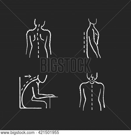 Bad Posture Problems Chalk White Icons Set On Black Background. Head Tilt. Flatback Syndrome. Spinal