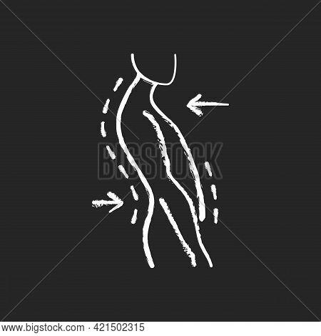 Swayback Posture Chalk White Icon On Black Background. Spine Curvature Disorder. Poor Posture. Postu