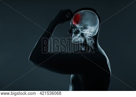 X-ray Of A Man's Head. Medical Examination Of Head Injuries. Cerebral Stroke. Frontal Part Of The Br