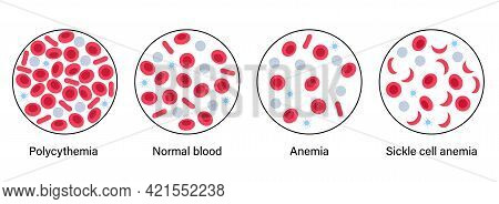 Normal Blood, Polycythemia, Anemia, Specimen With Sickle Anemia. Human Blood Cells Structure. Thromb