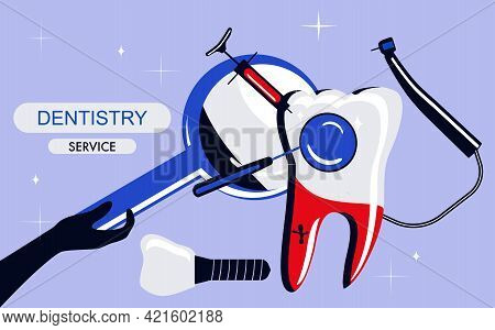 Dentistry Service Banner In Pop Art Style.huge Molar And Implant.drill Bit, Curing Teeth With Caries