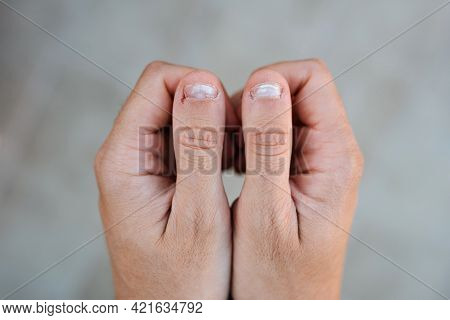 Close Up Detail Of Two Hands Together With Thumbs With White And Bitten Nails