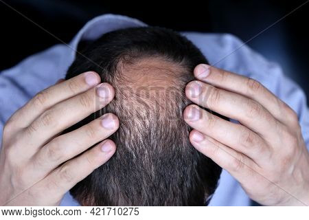 Baldness, Man In Office Shirt Concerned About Hair Loss. Male Head With A Bald