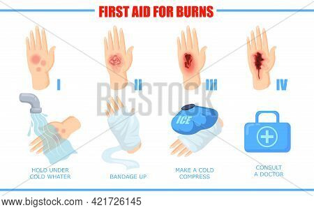 Ways Of Healing Different Skin Burn Injuries. Cartoon Vector Illustration. First Aid Methods For Dif