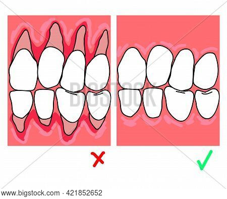 Exposure Of The Neck Of The Tooth. Cartoon. Vector Illustration.
