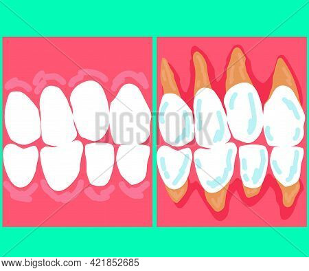 Exposure Of The Neck Of A Human Tooth. Dentistry. Cartoon. Vector Illustration.