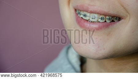 Beautiful Caucasian Young Girl In Dental Braces Smiles. Teenage Concept. Tooth Alignment With Braces