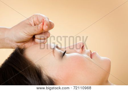 Therapist Giving Acupuncture Treatment To Customer In Spa