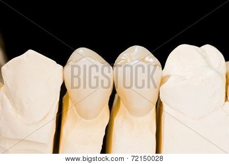 Ceramic Crowns