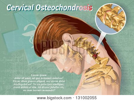 Female image showing a cervical osteochondrosis medical infographic poster.