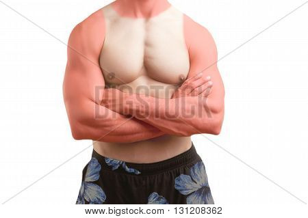 Fit Man Standing In A Beach With A Sunburn