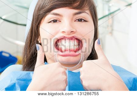Attractive Female Patient Wearing Retractor And Thumb Up