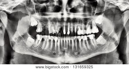 Human teeth with nerves photographed with a dental X-ray technology