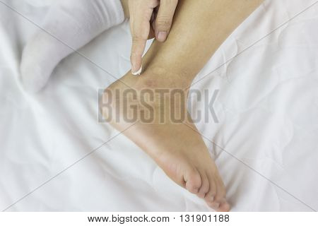 Focused At Ankleand Lotion On Finger, Women Apply Lotion On Dried Ankle, Rough Or Not Smoothankle,mo